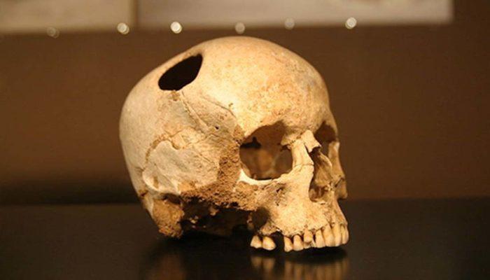 Трепанацию черепа делали в Китае более 3500 лет назад