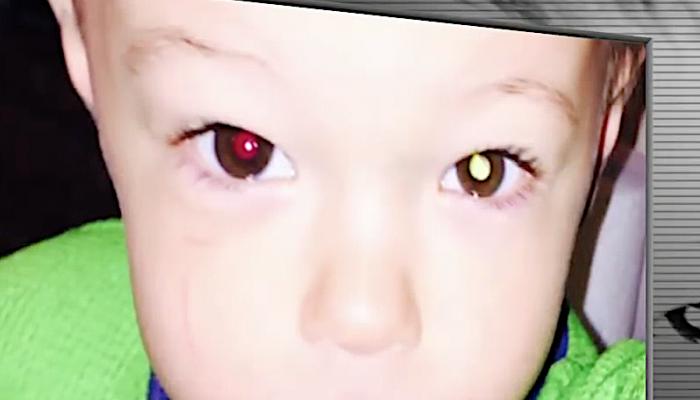 Мама заметила у 2-летнего сына странное пятно в глазу. Это спасло мальчику жизнь