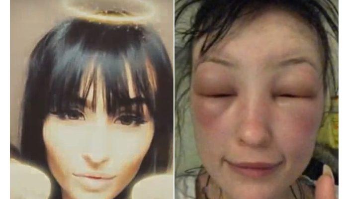 Девушка покрасила волосы, а через 3 дня её госпитализировали