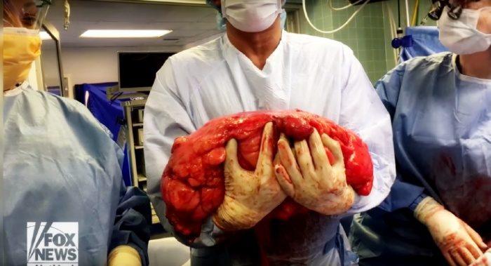 Мужчина думал, что у него пивной животик. А оказалось, что это 14-килограммовая опухоль