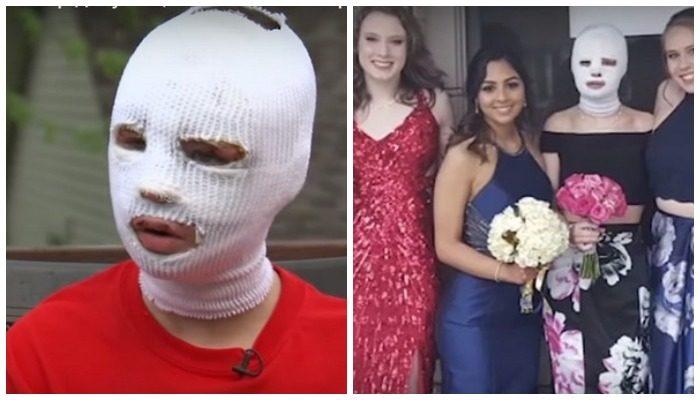 15-летняя девушка из-за ожогов на лице не пошла на выпускной. И тогда выпускной «пришёл» к ней
