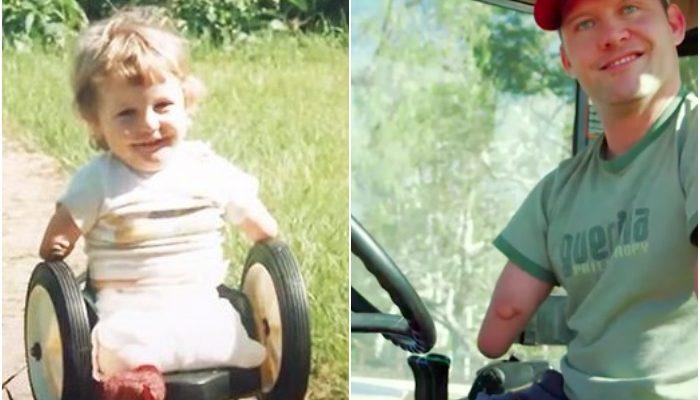 Он родился без рук и ног, но водит трактор и работает на абрикосовой ферме. Его закалил семейный юмор, особенно бабули
