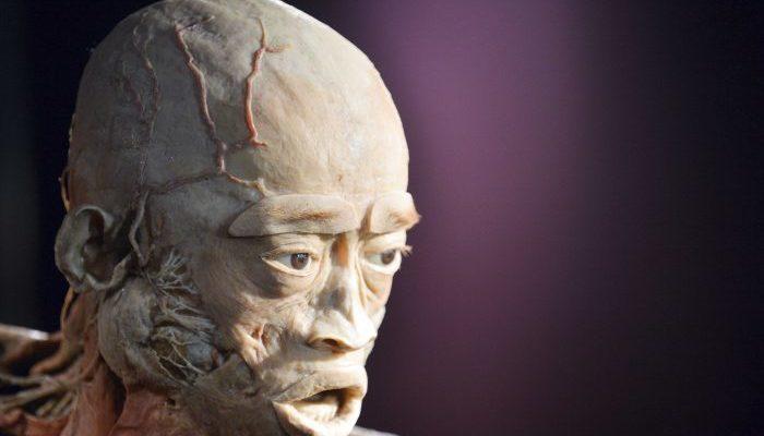 Невропатолог-противник выставки пластинированных тел призывает протестировать образцы тканей