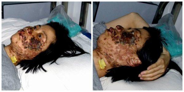 Фотографии Гао Жунжун сделанные 7 мая 2004 года – через 10 дней после того как охранники многократно избивали её электрическими дубинками в исправительно-трудовом лагере Луншань.