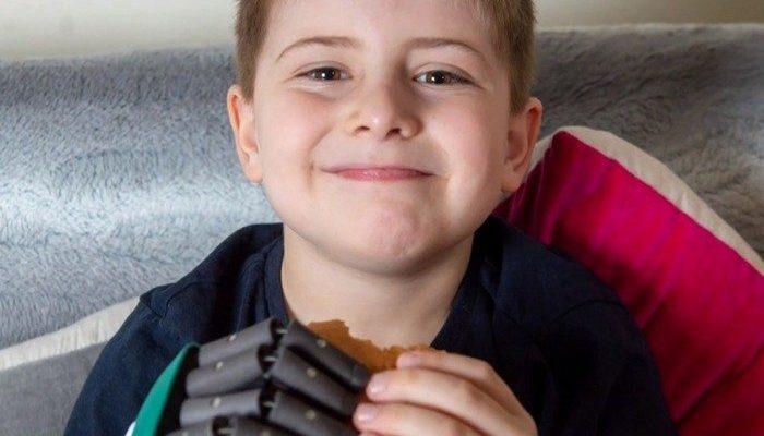 8-летний мальчик стал самым молодым обладателем бионической руки и исполнил свою мечту — держать гамбургер двумя руками!