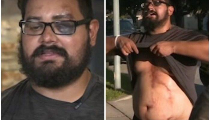 (Видео) Вышел погулять с собаками и получил удар молнии! На счастье, у происшествия были очевидцы