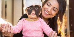 Удалить маленькой американке родимое пятно с лица взялся российский врач. Денег не хватало, но помощь пришла, откуда не ждали!
