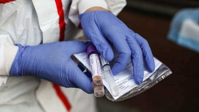 Наборы для сбора образцов для тестов на коронавирус