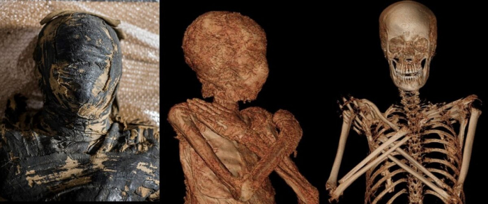 На других отсканированных изображениях мумии видны ее кости и оставшиеся ткани. (Предоставлено Варшавской мумией)