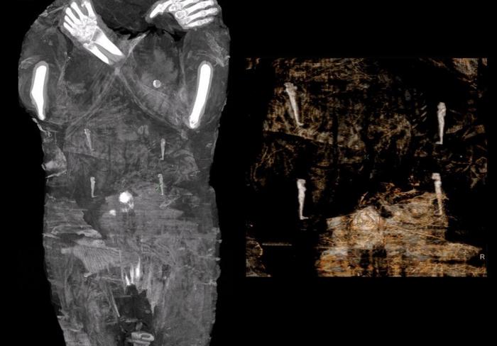 Сканирование, показывающее амулеты, намотанные на женщину. (Предоставлено Варшавской мумией)