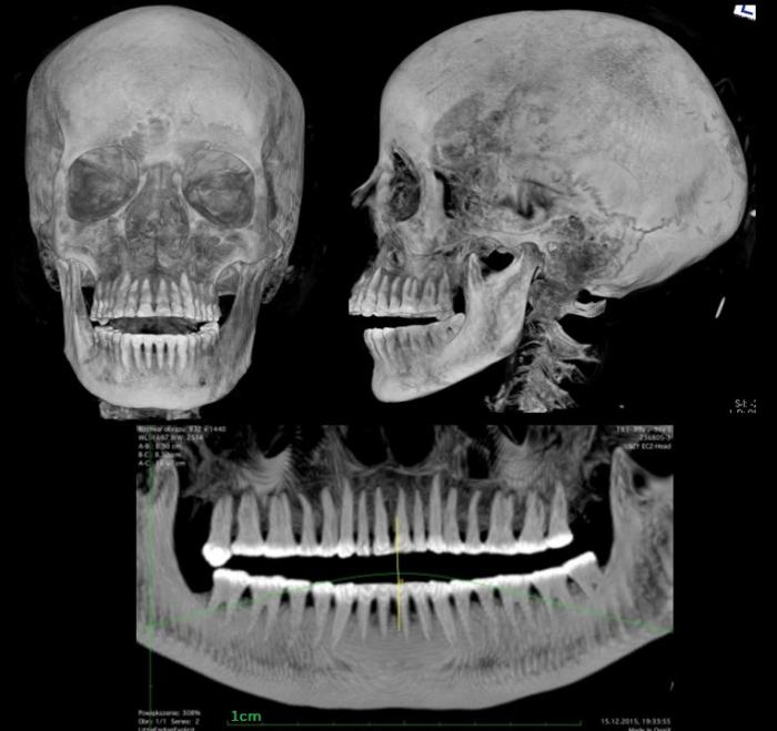 Сканирование, показывающее череп и зубы мумии. (Предоставлено Марцином Яворским / Warsaw Mummy Project)