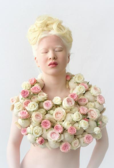 девочка-альбинос стала моделью