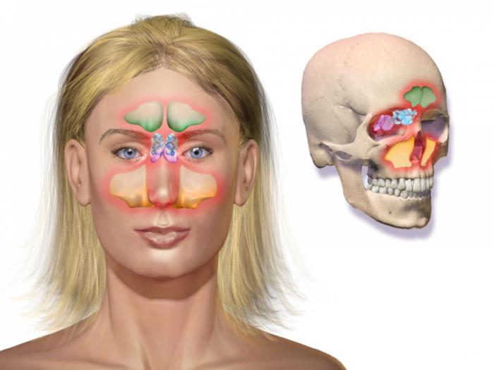 1024px Blausen 0800 Sinusitis 768x576 1 e1625573452187 - Синусит. Эффективный и естественный способ лечения