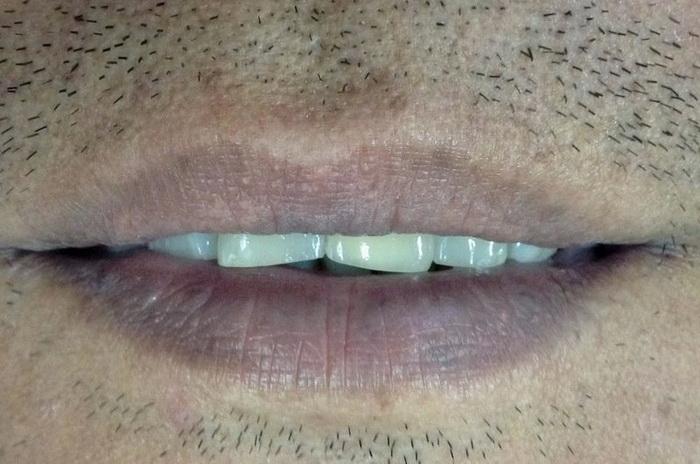 губы, здоровье, диагноз