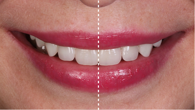 10 главных признаков идеальной улыбки, по мнению стоматолога