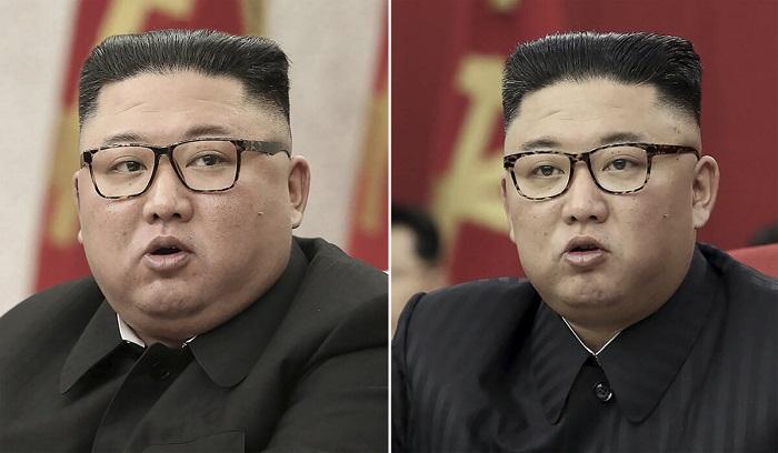Пятно на голове Ким Чен Ына, заклеенное пластырем, добавили к списку тайн его здоровья